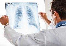 Lungenkrebs Untersuchung Rauchen Vermeiden