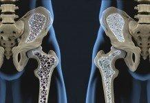 Osteoporose Knochendichte Vorbeugen