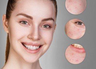 Pickel Hilfe Vermeiden Mitesser Haut