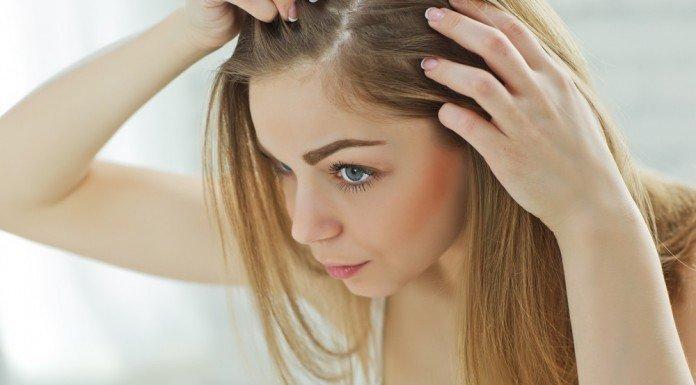 Schuppen Haare Trocken Fettig Hilfe