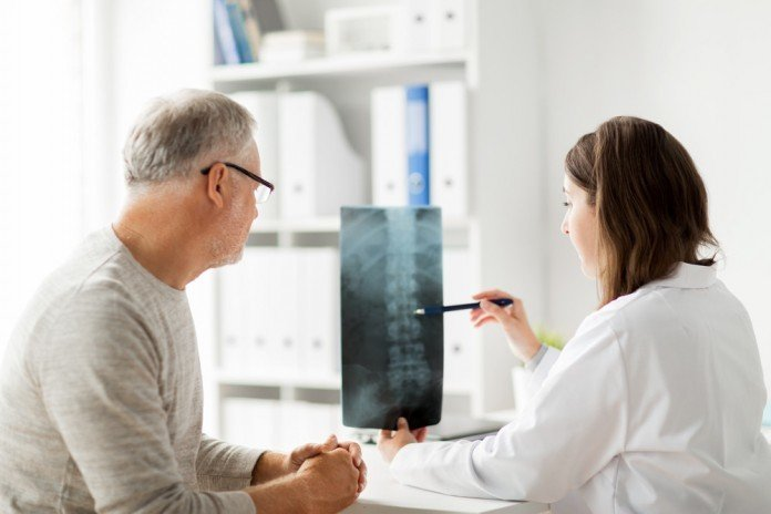 Arzt Rückenschmerzen Röntgen Bandscheibe