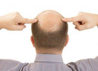 Haarausfall Testosteron Grund Ursachen