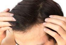 Haartransplantation Haare Wachsen Glatze