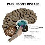 Parkinson Gehirn Schlaganfall