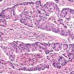 Blutbild Darmkrebserkrankung Darm Krebs