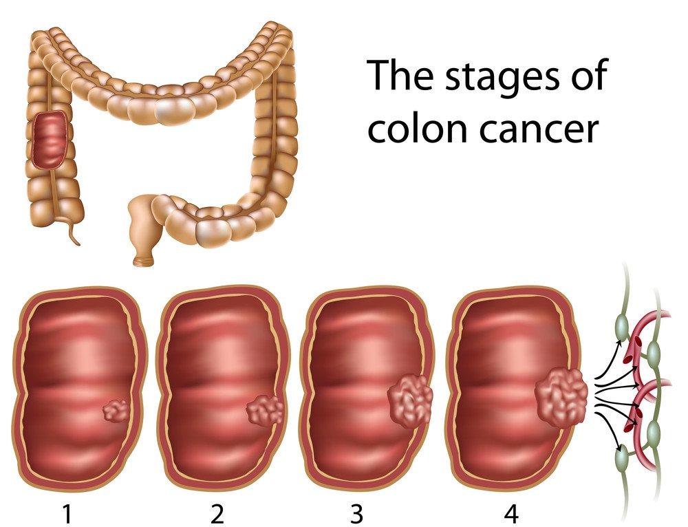 Blutwerte Darmkrebs