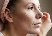 Akne Behandlung Aknenarben Inhaltsstoffe Pickel Narben