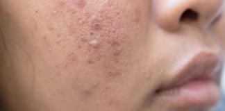 Akne-Behandlung-Tipps-Hilfe-Haut-Medikamenete