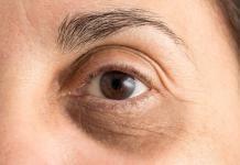 Augenringe-Behandlung-Entfernen-Tipps