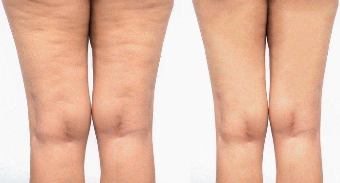 Cellulite-Behandlung-Kosten-Erfolg-Methoden-Produkte