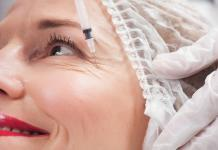 Faltenbehandlung-Tiefe-Falten-Botox-Kosten-Altersfalten