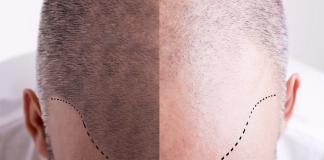 Haartransplantation-Haarausfall-Haarwurzel