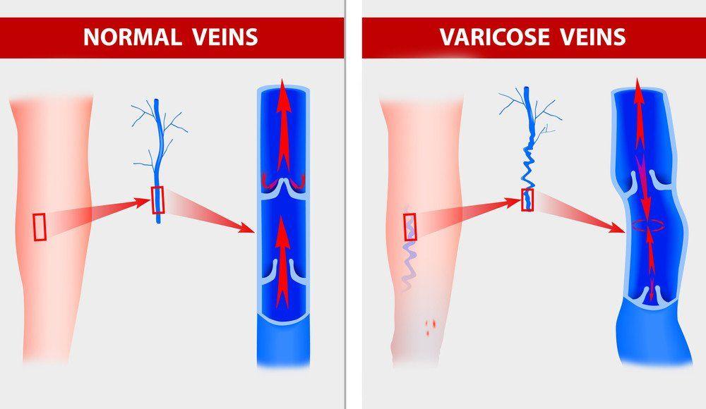 Krampfadern-Darstellung-Druchblutung-Ursache