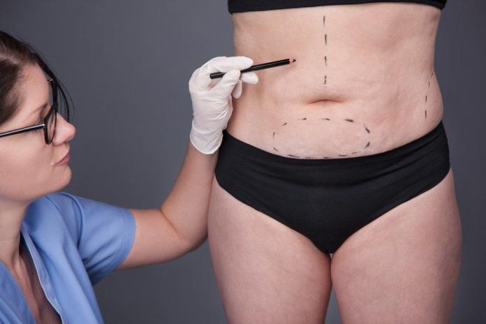 Schönheitsoperationen-Bauch-Fettabsaugen-Liposuktion-Kosten