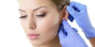 Ohrenkorrektur-Ohren-Anlegen-Kosten-Segelohren